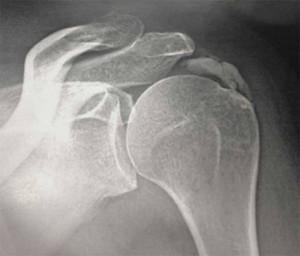 2 types de douleurs de l 39 paule rhumaguide for Douleur genou interieur