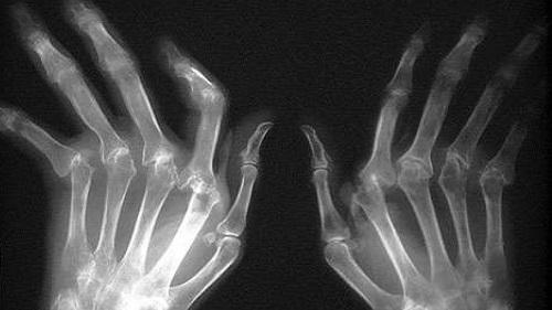 Radiographie déformation des mains dans une polyarthrite