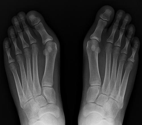 Radiographie hallux valgus