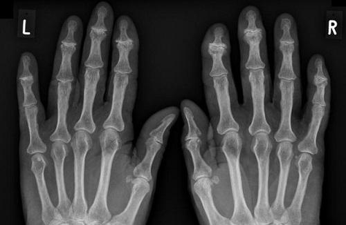 Radiographie des nodosités d'Heberden