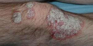 Les raisons et le traitement du psoriasis chez les enfants