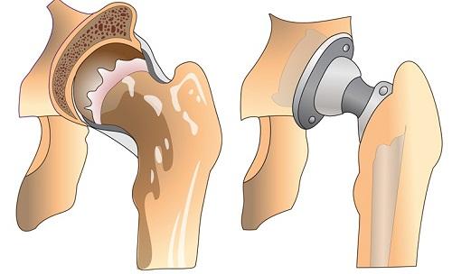 Schéma d'une prothèse de hanche