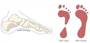 Pied creux et pied normal