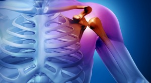 Arthrose de l'épaule
