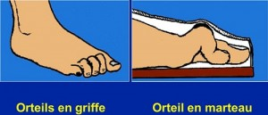 Autres déformations des orteils