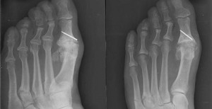 Radiographie d'une fracture d'un métatarse