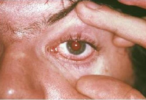 Inflammation de l'oeil