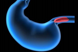 Hémorragie digestive