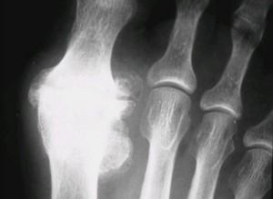 Radiographie hallux rigidus