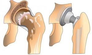 Schéma d'une prothèse de la hanche