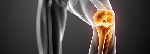 Tendinite du genou