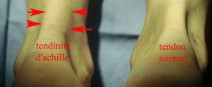 Le tendon d'Achille